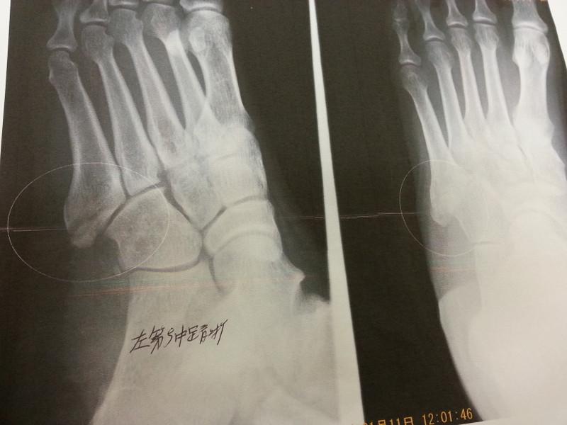 骨折の場合の施術tの流れ03