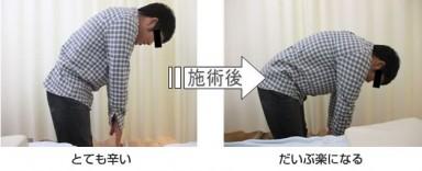 ぎっくり腰:治療事例02