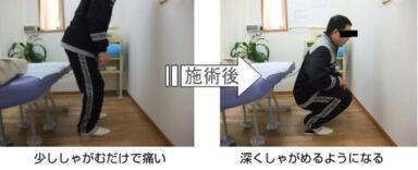 膝の痛み:治療事例01