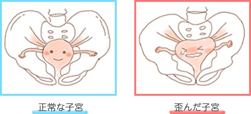 正常な子宮と歪んだ子宮